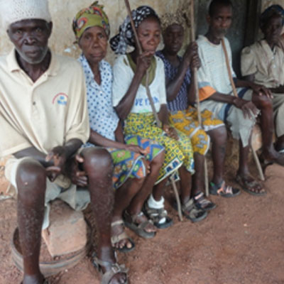 In Suakoko: Lepers abandoned